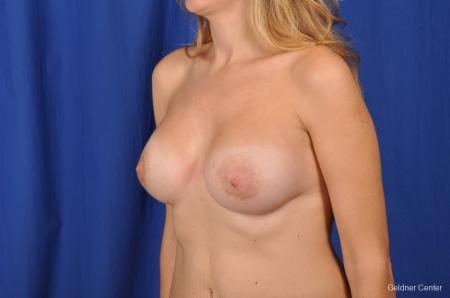 Breast Augmentation Streeterville, Chicago 2370 -  After Image 4