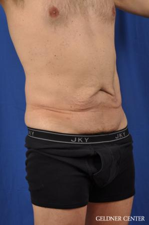 Abdominoplasty For Men: Patient 2 - Before Image 2