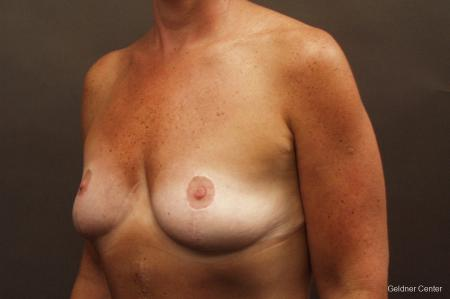 Chicago Breast Augmentation 2524 - Before Image 3
