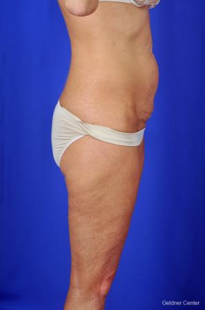 Tummy Tuck: Patient 2 - Before Image 3