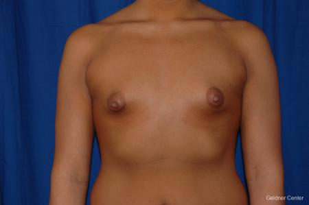 Breast Augmentation: Patient 156 - Before Image 1