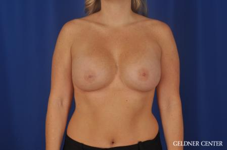 Breast Augmentation: Patient 184 - After Image 1