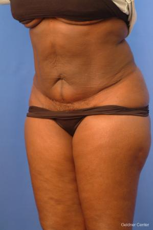 Vaser lipo patient 2540 before and after photos -  After Image 5