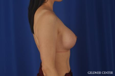 Breast Augmentation Hinsdale, Chicago 8751 -  After Image 2