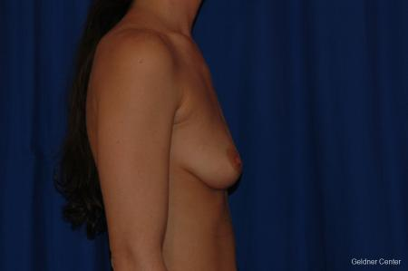 Breast Augmentation Streeterville, Chicago 2071 - Before Image 2