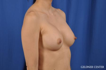 Breast Augmentation: Patient 176 - After Image 2
