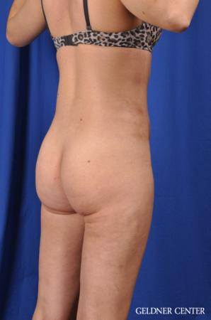 Liposuction: Patient 27 - Before and After 4