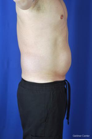 Liposuction For Men: Patient 9 - Before Image 3