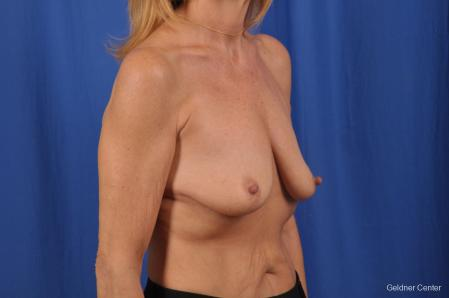 Breast Lift: Patient 44 - Before Image 3