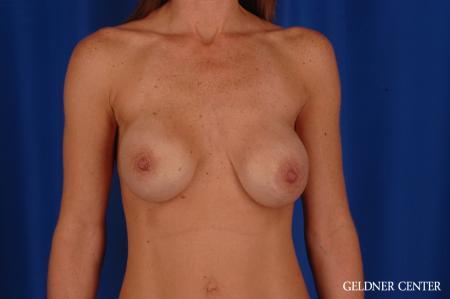 Complex Breast Augmentation: Patient 36 - Before 1
