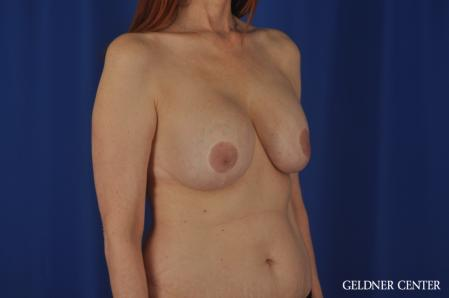Complex Breast Augmentation: Patient 37 - Before Image 2