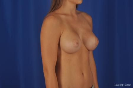 Breast Augmentation Streeterville, Chicago 3231 -  After Image 3