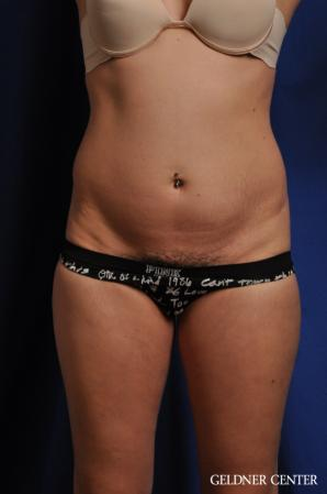 Tummy Tuck: Patient 32 - Before Image 1