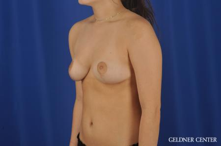 Chicago Breast Reduction 8752 -  After Image 4
