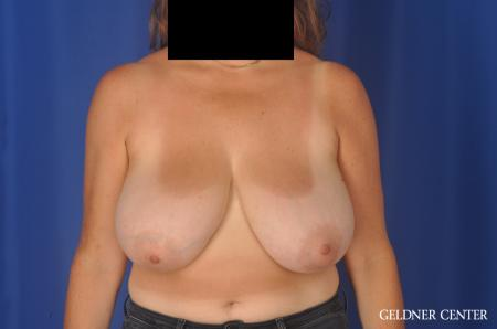Breast Reduction: Patient 13 - Before Image 1
