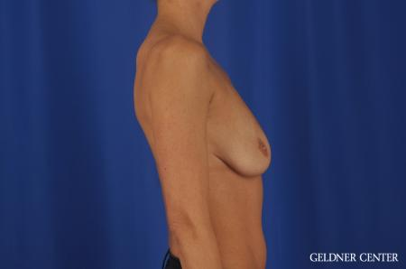 Chicago Breast Augmentation 5476 - Before Image 3