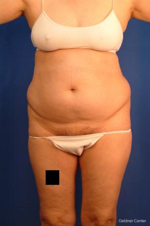 Vaser lipo patient 2536 before and after photos - Before Image