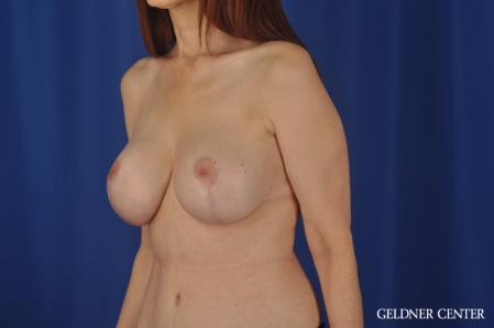 Complex Breast Augmentation: Patient 37 - After Image 4