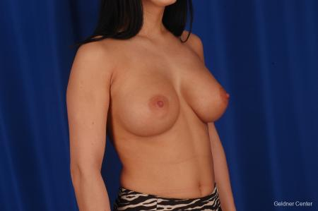 Breast Augmentation Lake Shore Dr, Chicago 2402 -  After Image 3