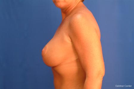 Chicago Breast Augmentation 2524 -  After Image 4