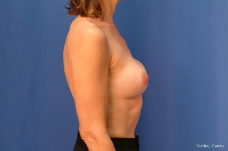 Chicago Complex Breast Augmentation 2445 - Before Image 2