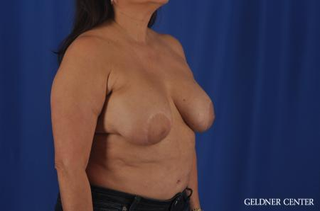 Breast Lift Hinsdale, Chicago 11863 - Before Image 2
