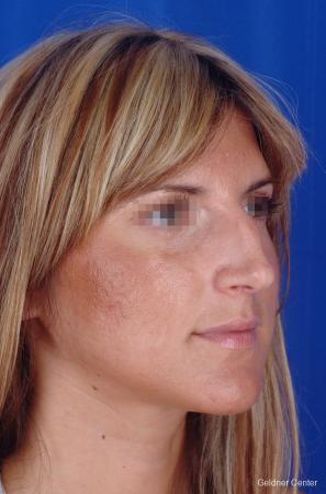 Rhinoplasty: Patient 5 - Before Image 2
