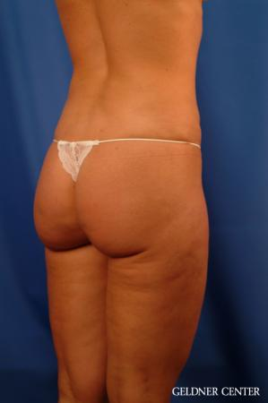 Vaser lipo patient 2624 before and after photos -  After Image 3