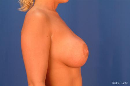Breast Augmentation Hinsdale, Chicago 2427 - Before Image 2