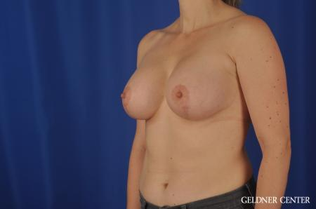 Chicago Breast Lift 4289 -  After Image 4