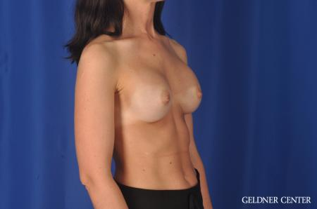 Complex Breast Augmentation: Patient 33 - Before Image 2