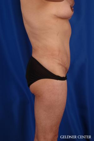 Vaser lipo patient 2629 before and after photos -  After Image 3