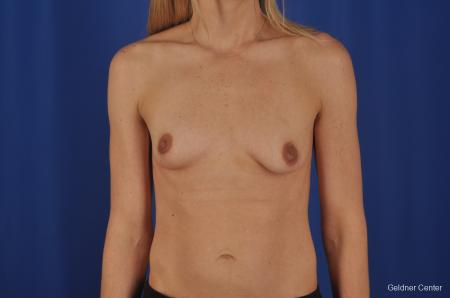 Chicago Breast Augmentation 6653 - Before Image 1