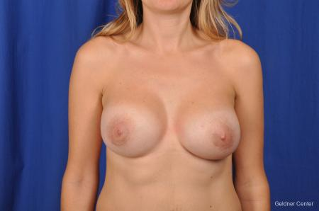 Breast Augmentation Streeterville, Chicago 2370 -  After Image 1