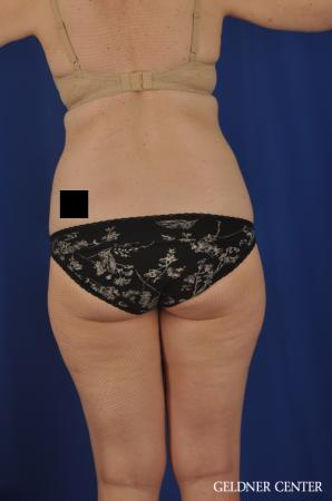 Liposuction: Patient 26 - Before and After 4