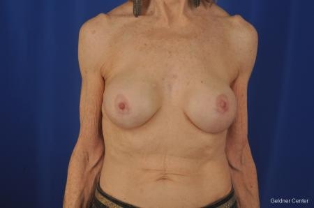 Breast Augmentation Hinsdale, Chicago 2055 -  After Image 1