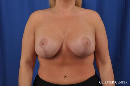Breast Lift: Patient 41 - After Image 1
