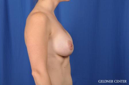 Breast Augmentation: Patient 170 - After Image 3