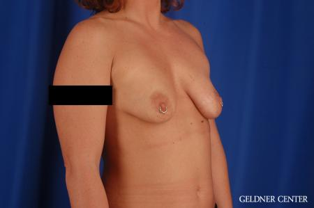 Breast Augmentation: Patient 171 - Before Image 2