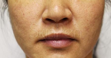 SkinPen®: Patient 5 - After 1
