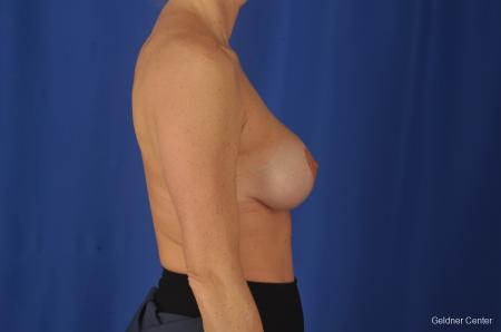Breast Lift: Patient 20 - After Image 2