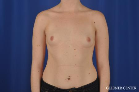 Breast Augmentation: Patient 137 - Before Image 1