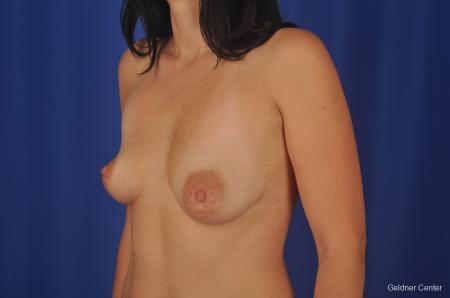 Chicago Complex Breast Augmentation 2306 - Before and After Image 3