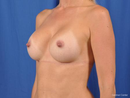 Breast Augmentation: Patient 148 - After Image 4