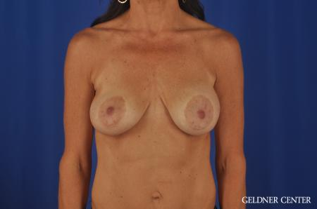 Breast Augmentation Streeterville, Chicago 5470 - Before Image 1