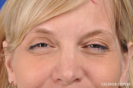 Eyelid Lift: Patient 9 - Before and After Image 3