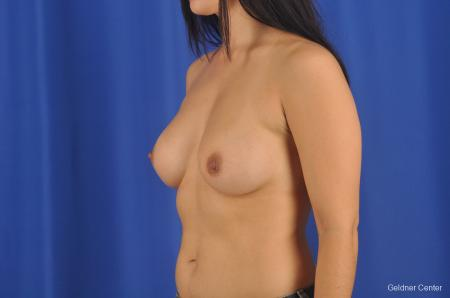 Breast Augmentation Hinsdale, Chicago 2299 -  After Image 4