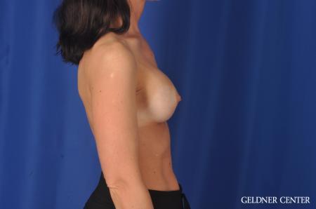 Complex Breast Augmentation: Patient 33 - Before Image 3