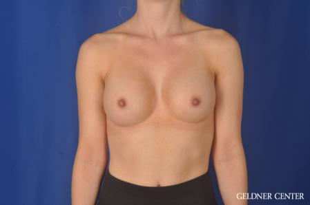 Breast Augmentation: Patient 187 - After Image 1
