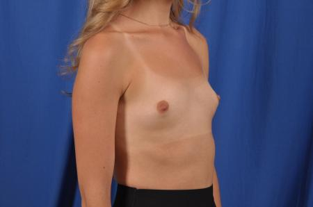 Breast Augmentation: Patient 82 - Before Image 3